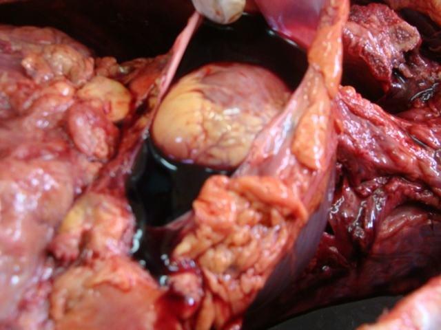 cardiac tamponade | forensic pathology online, Skeleton