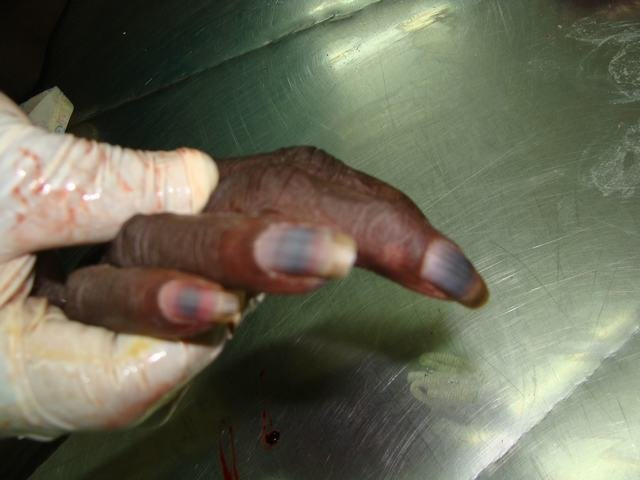 parrot beak appearance of nails-clubbing | Forensic Pathology Online